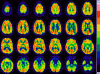 A web-based, interactive atlas and reference database for normal findings and pathologies on brain PET imaging